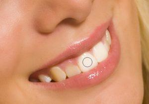 Abb. 5 - Zähne einfärben
