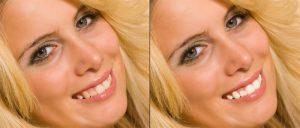 Abb. 6 - Fertig ist das Zahnpastalächeln